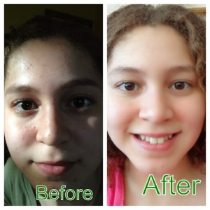 Miliany Bonet's before and after face photo