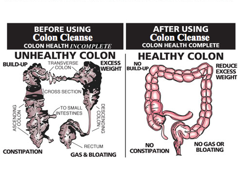 healthy_unhealthy_colon